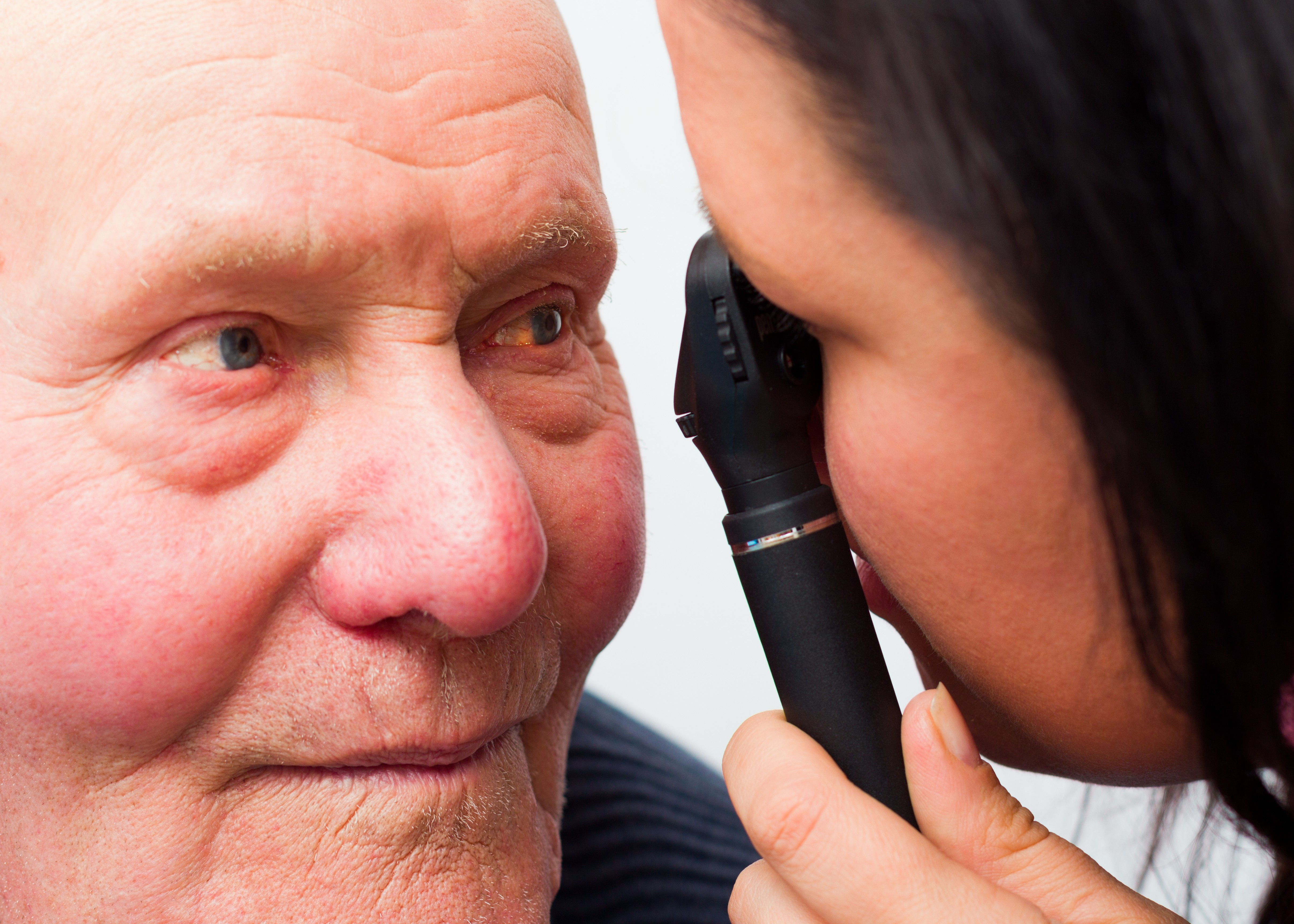 Home Care in San Jose CA: Causes of Blindness in the Elderly