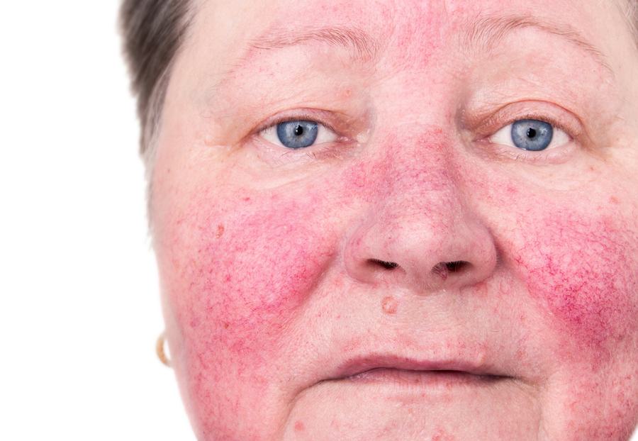 Home Care in Palo Alto CA: Rosacea Awareness Month