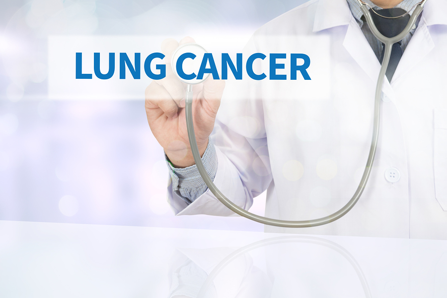 Home Care in Los Gatos CA: Things to Know About Lung Cancer