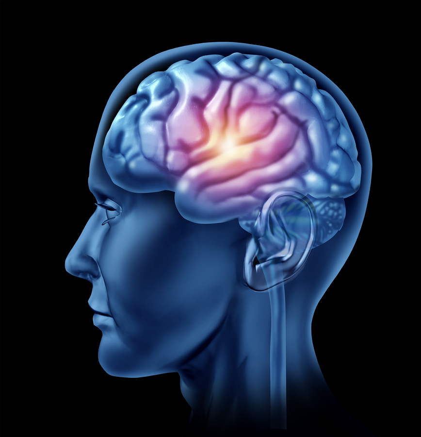Senior Care in Saratoga CA: Traumatic Brain Injuries